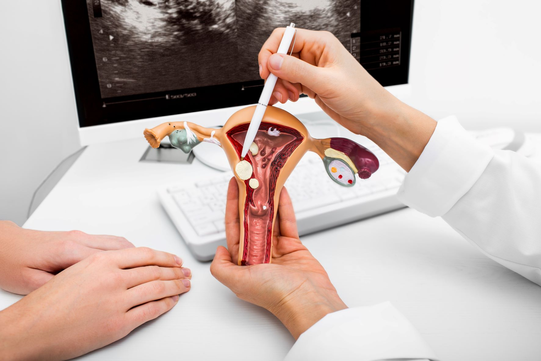 Doctor showing types of fibroids